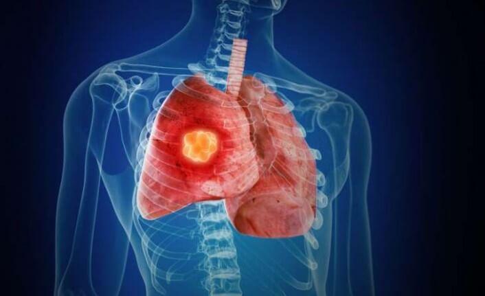 saol akciğer sağ akciğer boyut karşılaştırması