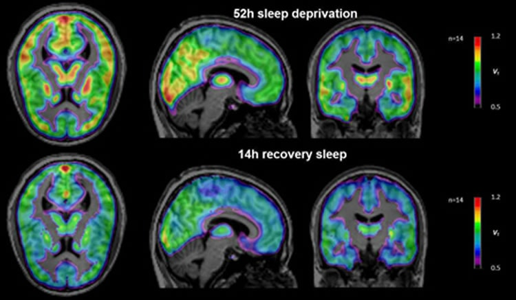 uyku halinde beynin çalışması